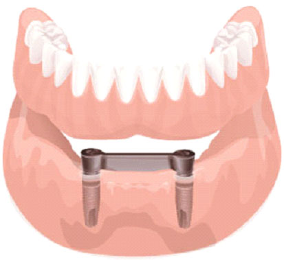 implantes10