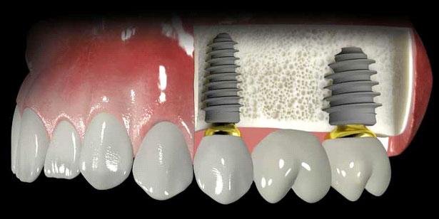 implantes6
