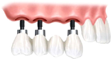 implantes7