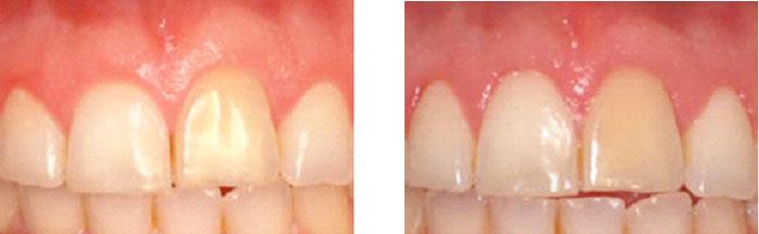 periodontia2
