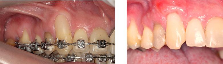 periodontia3